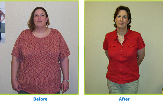 Before and after weight loss surgery | Licensed under a ...