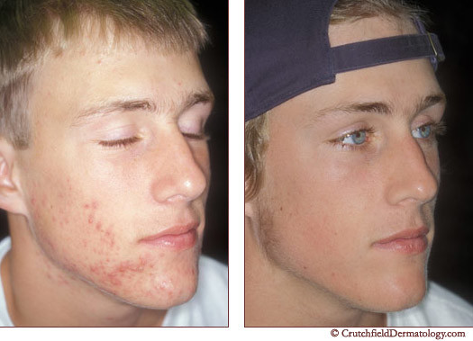 Acne laser treatment on light skinned young man: before