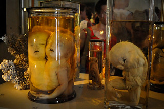 Scientific Collection of Kunstkamera: Fetal Deformaties | by goingslowly