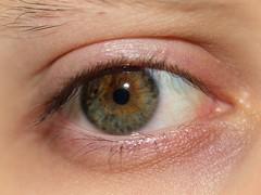 Tired Hazel Eye