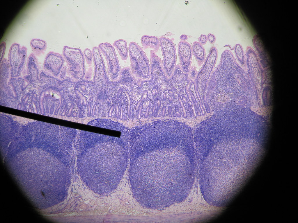 Peyer's patches - ileum of small intestine   Four large ...