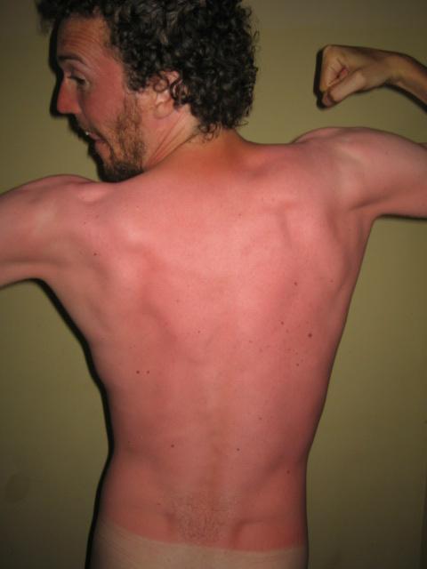 Sunburnt sexy boy