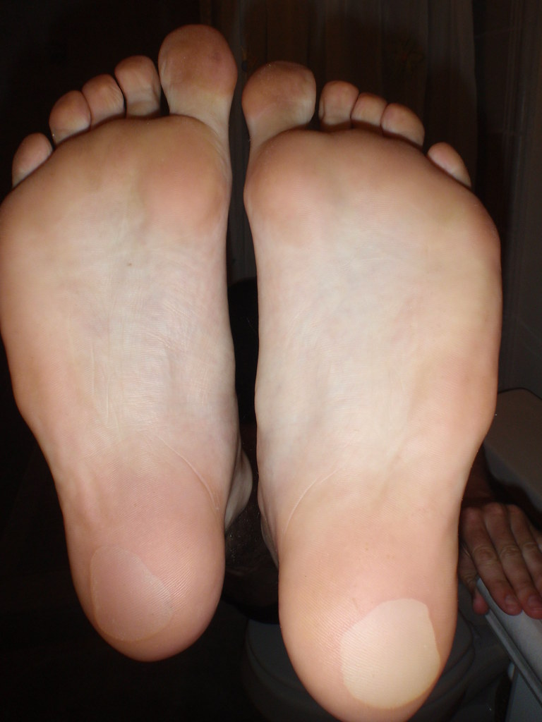Heel Blisters New Running Shoes