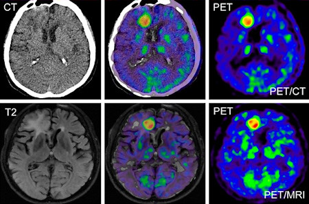 pet ct vs pet mri as an example of similar results with pe flickr