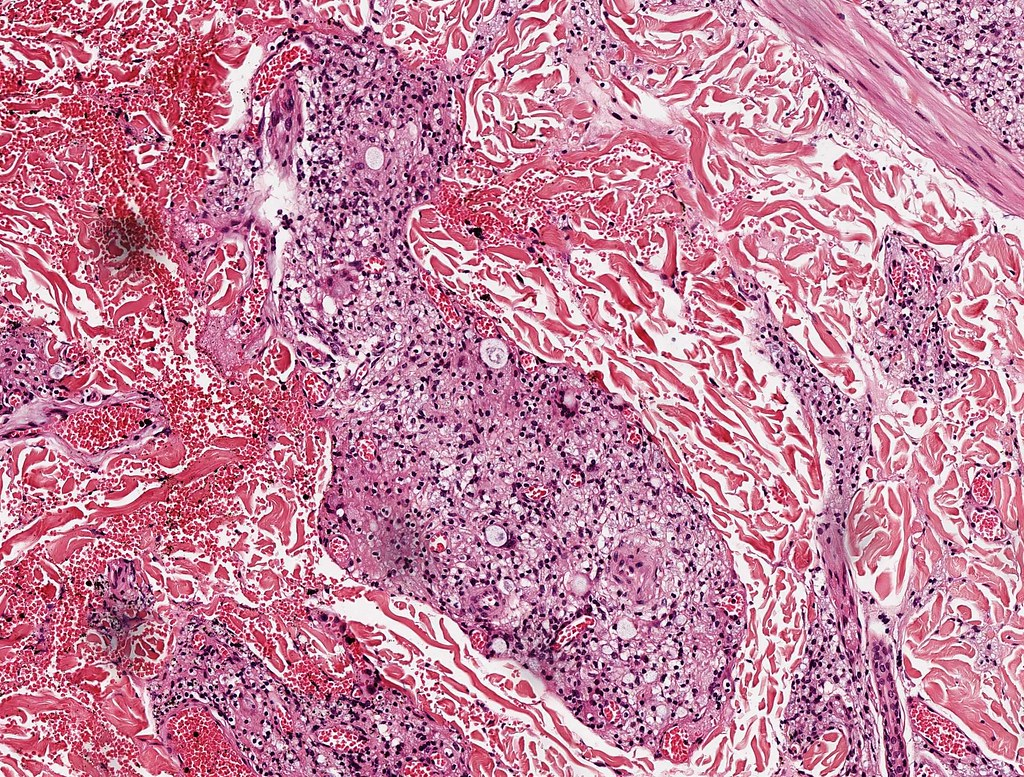 outline leprosy Skin-nontumor / clinical dermatology - leprosy mycobacterium leprae is an obligate intracellular gram positive and weakly acid fast organism the complexity of presentation is related to.