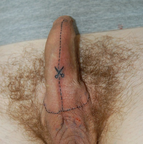 Surgery for penis enlargement