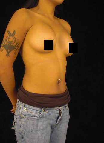 Eastern Tn Breast Augmentation Blog 8