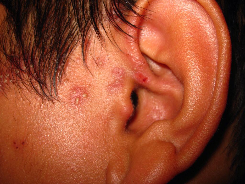 Shingles Lesions (Varicella Zoster, Trigeminal/Mandibular)…  Flickr
