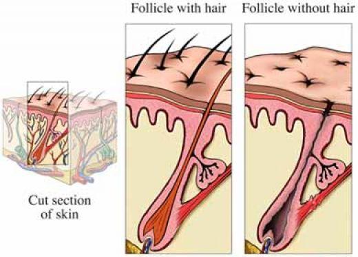 落髮跟禿頭有許多因素造成,了解落髮跟禿頭的原因,對症下藥才是根本!現代人認為治療落髮跟禿頭只有植髮才有效。真皮層基質生髮術是美上美皮膚科獨有的生髮技術