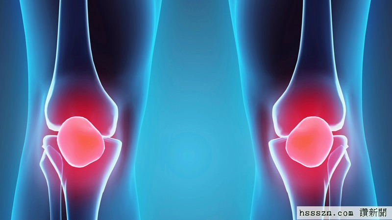 bone-cartilagee724ae8d54216d0c8310ff0100d05193