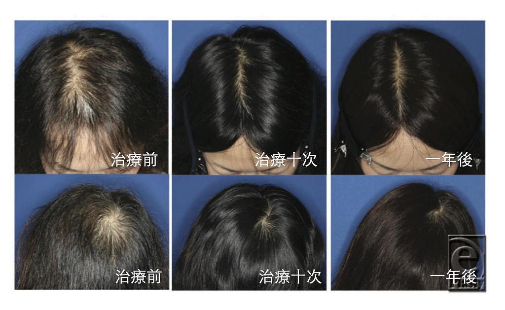治療禿頭掉髮是一門學問!美上美皮膚科利用生髮、植髮等方式讓您重拾自信,不再為禿頭煩惱。毛囊有幹細胞,幹細胞在生髮裡扮演重要角色,可有效的治療禿頭和落髮