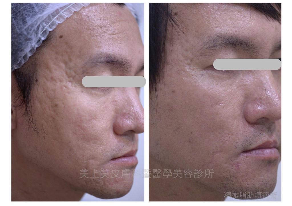 痘疤治療要靠美上美皮膚科的外科手術,精微脂肪填疤術專治嚴重的痘疤凹陷!痘疤治療中難治的凹痘疤要靠精微脂肪填疤術,是凹痘疤的救星。痘疤治療就是要找美上美