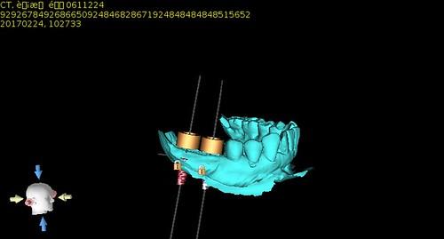 擔心植牙失敗風險?黃泓傑醫師分享植牙手術導板案例讓植牙定位精又準(4)