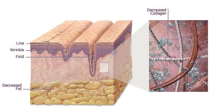 洢蓮絲有玻尿酸的優點,注入皮膚時有效達到除皺紋的效果,並刺激膠原蛋白增生,改善皺紋凹陷,洢蓮絲除了除皺紋也有鼻子雕塑跟下巴雕塑的效果,是有效的隆鼻方式