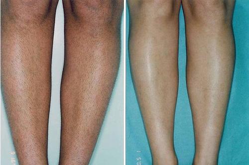 美上美皮膚科的專用除毛雷射機器是二極體雷射,又稱無痛除毛雷射,在常在做腋下除毛等等的相關療程。無痛除毛雷射為現在最夯的一種雷射除毛方式,療程無痛又有效