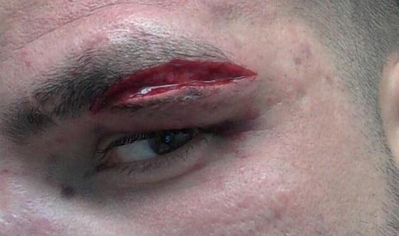 外傷縫合跟傷口縫合是一門技術,美上美皮膚科的外傷縫合手術跟傷口縫合手術為業界第一,美上美將患者的傷口縫合並讓您的外傷疤痕的傷害降到最低,為您的皮膚把關
