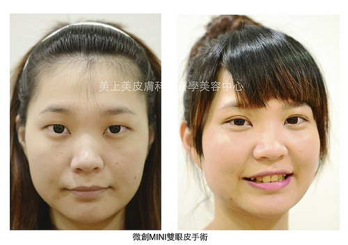 想割雙眼皮請找美上美皮膚科,美上美的雙眼皮手術為業界第一,美上美提供最先進的雙眼皮手術,讓您擁有迷人的電眼找回自信的光采。想割雙眼皮,美上美是你的首選