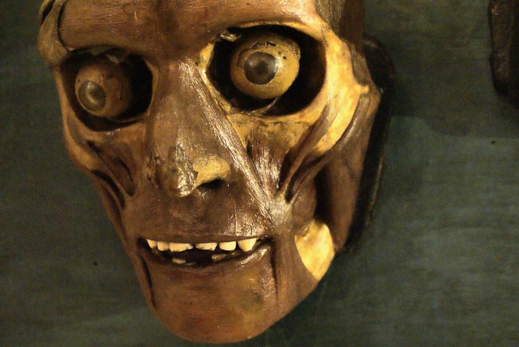 Collection d'anatomie du musée Poggi à Bologne : Un visage écorché.