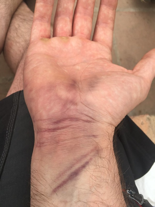 That's what my hand looked like after I crashed
