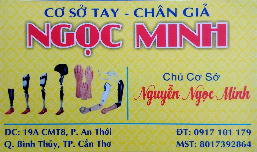 Cơ sơ chân tay giả Ngọc Minh Cần Thơ - Điện thoại 0917101179