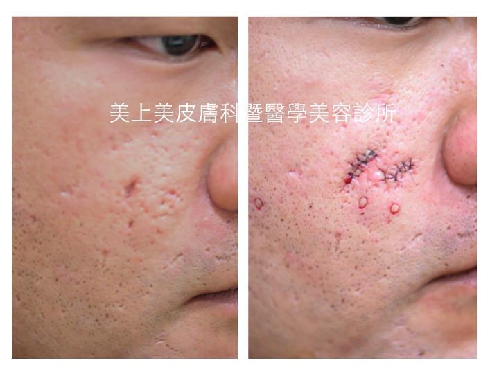 痘疤治療最有效的外科手術是全皮層移植,是嚴重型凹痘疤的最佳治療方式,連雷射都解決不了的凹痘疤,就要靠全皮層移植,全皮層移植是美上美獨特的痘疤治療方式。