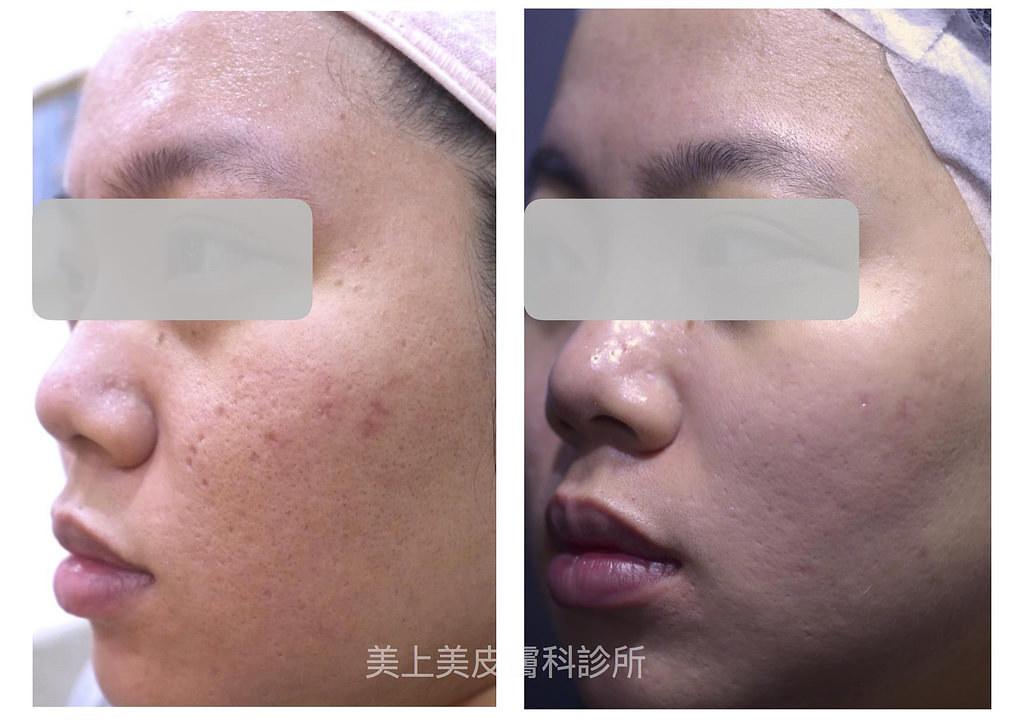 TCA深層換膚是痘疤治療中很厲害的一種治療,這種痘疤治療專治冰鑿型痘疤跟廂型痘疤,TCA深層換膚這種痘疤治療方式,對於冰鑿型痘疤跟廂型痘疤的患者,是很有效的一種治療