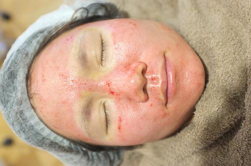 最新的痘疤治療技術結合彈力飛針跟深層換膚及皮下重建術的概念,讓痘疤治療有更棒的效果。美上美的痘疤治療是複合式療程,搭配其他的痘疤治療方式會有更棒的效果