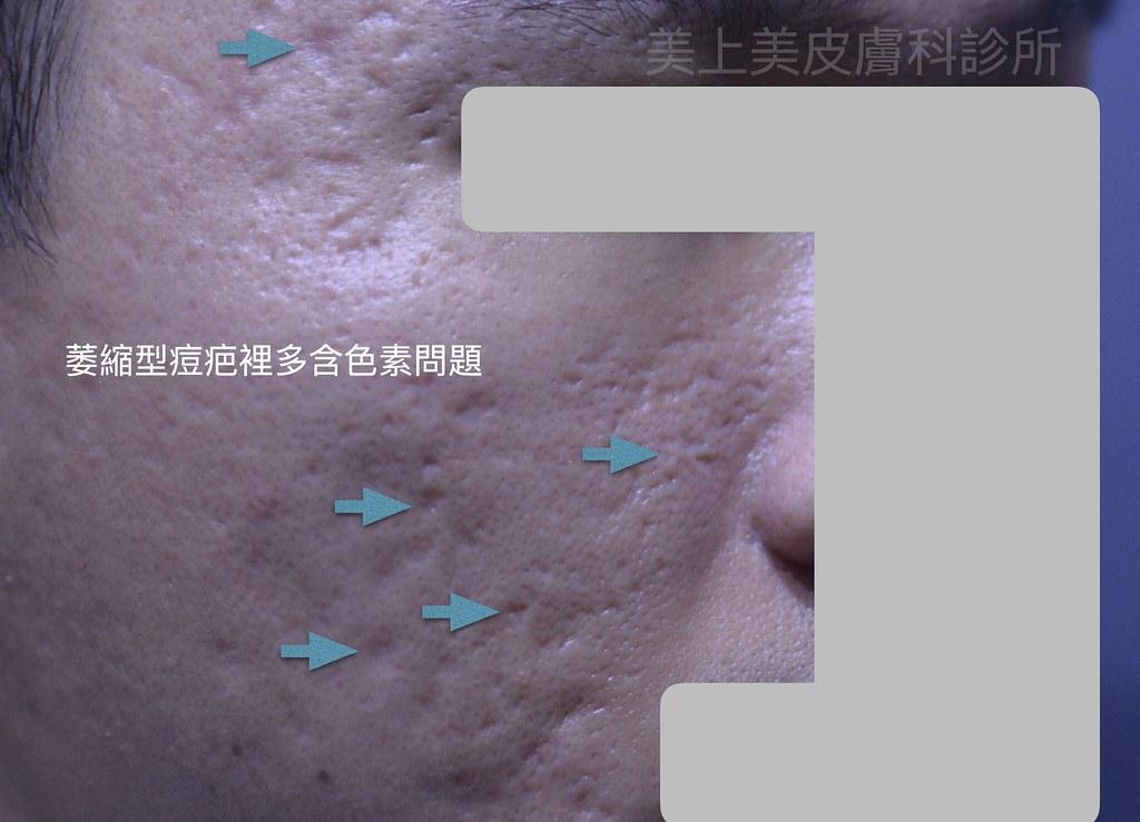 凸痘疤凹痘疤令人困擾,痘疤治療是一件困難的事,皮秒雷射治療痘疤是最新最佳的痘疤治療方法,痘疤治療診所推薦美上美皮膚科,治療凸痘疤凹痘疤更是美上美的專業