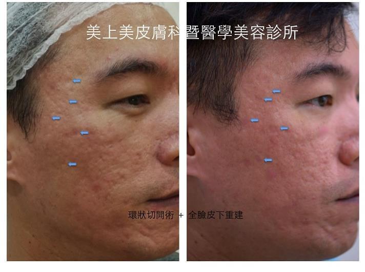 治療箱型的凹痘疤,要靠環狀切開術,這種痘疤治療方式,專門解決有箱型凹痘疤的患者,美上美獨特的痘疤治療,有用又有效。想要有效的痘疤治療就去美上美皮膚科。