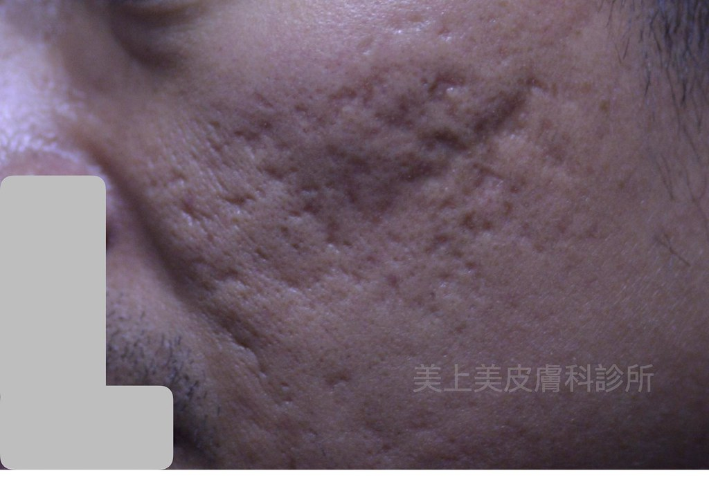 能做痘疤治療的雷射難道只有飛梭雷射嗎?當然不是!要用雷射做痘疤治療,最後還是要回歸到你的痘疤是哪一種型態。依照痘疤種類,選出相對應的雷射才會事半功倍。