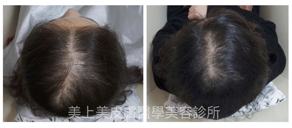 遺傳性禿頭怎麼辦?掉髮禿頭的問題讓人煩惱,真皮層基質生髮植髮術來幫助您!美上美皮膚科改善您禿頭掉髮的問題,真皮層基質生髮植髮術重新讓您擁有茂密的頭髮!