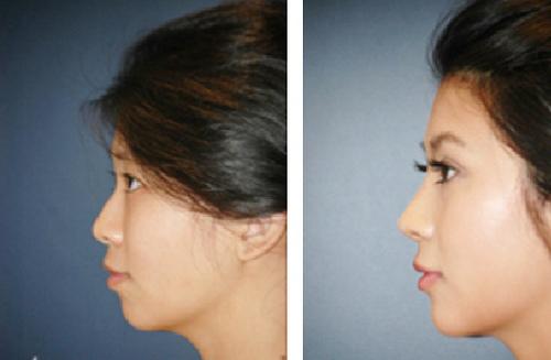 玻尿酸專治臉頰凹陷和除皺紋跟豐潤蘋果肌,玻尿酸做下巴雕塑會有精緻的臉蛋,玻尿酸治療除淚溝和除皺紋特別的有效,玻尿酸有臉頰豐頰、修飾容貌跟除皺除紋的效果