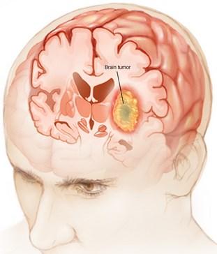 Obat Kanker Otak Resep Dokter