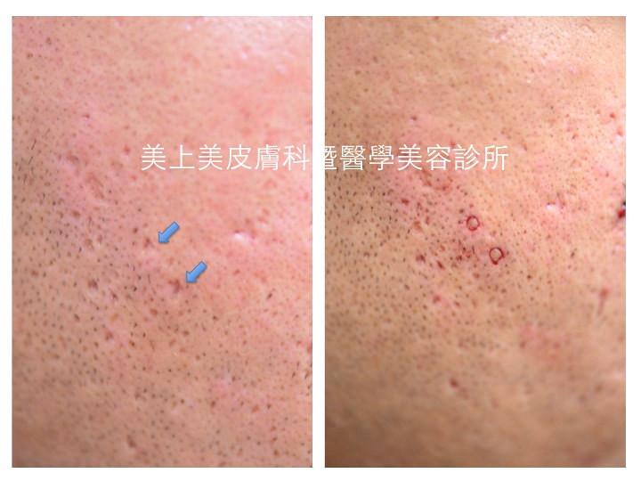 痘疤治療最厲害的外科手術是全皮層移植,是嚴重型凹痘疤的最佳治療方法,連飛梭都解決不了的凹痘疤,就要靠全皮層移植,全皮層移植是美上美獨特的痘疤治療方法。