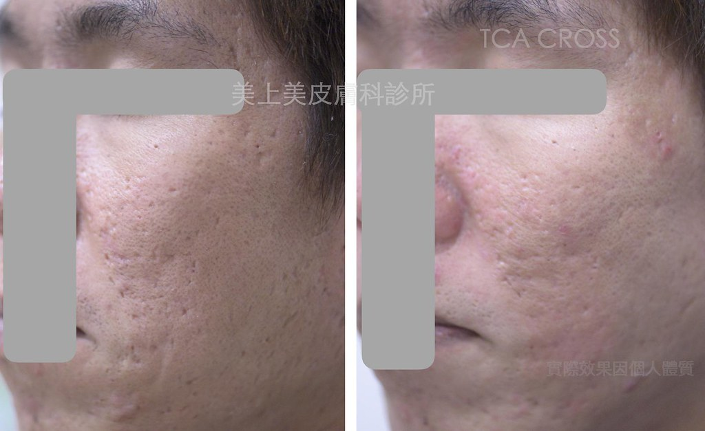 TCA深層換膚是痘疤治療中很有效的一種治療,這種痘疤治療專治冰鑿型痘疤跟廂型痘疤,TCA深層換膚這種痘疤治療,對於冰鑿型痘疤跟廂型痘疤的這類患者,是很有效的一種治療