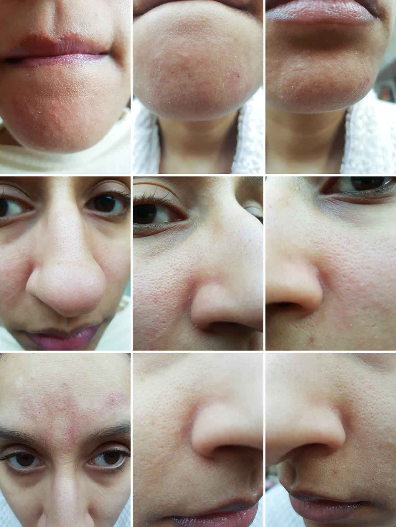 "How Effective Is The Blackhead Suction Remover [Review]: As you can see, after use the skin would become red and look almost bruised in places, however this did not last long and left no negative lasting effects. This happened particularly with the Big Round Nozzle when on the highest power level. When using it, there was no pain or discomfort and it was actually fascinating seeing the pores being cleaned in front of your eyes! If you have watched other videos of these Blackhead Suction Removers, you will know that they are pretty graphic and in some cases show some pretty clogged pores being ""sucked"" clean! I must emphasise I did not see my pores being quite so dramatically cleaned as on other videos, but I did see the Remover working its magic on some of my more congested areas! I am quite fortunate that as much as I have reasonably large pores they aren't excessively clogged so the Remover did not have too hard a job to perform on my skin but I would love to test it on someone whose skin needs a really deep clean to see how effective it is!"
