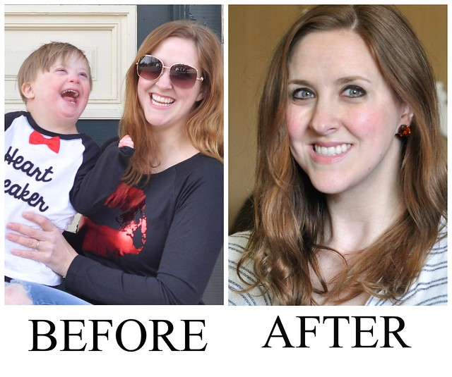Smile Brilliant Before & After #SmileBrilliant #SmileFearlessly #sponsored