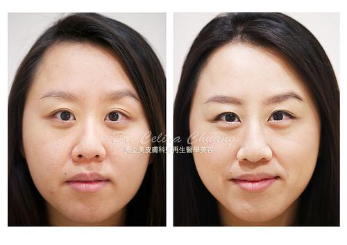 微晶瓷專治療除淚溝和除皺紋跟鼻子雕塑,微晶瓷是做下巴雕塑跟醫治鼻型不對襯的完美填充物,微晶瓷治療除淚溝和除皺紋有特別的效果,要除淚溝和除皺紋首選微晶瓷