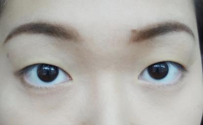 單眼皮讓你看起來無神?單眼皮讓你看起來眼睛很小?單眼皮讓別人覺得你很兇?美上美皮膚科的割雙眼皮手術為業界第一,讓您擁有迷人的電眼,是您割雙眼皮的首選。