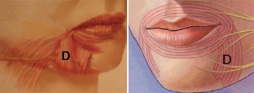 一照鏡子發現嘴角的木偶紋好明顯該怎麼辦?嘴角下面紋路俗稱木偶紋,讓許多愛美女生相當困擾。美上美的玻尿酸、肉毒桿菌、皮秒雷射、童顏針幫您徹底撫平木偶紋!