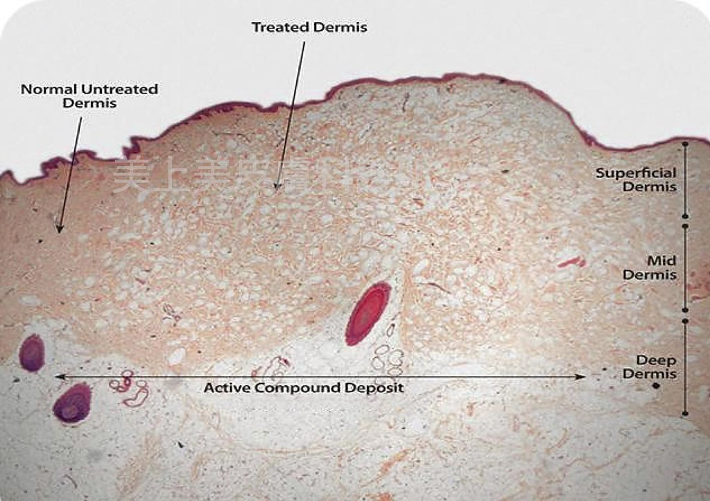 痘疤治療就是要做氣動脈衝!是美上美皮膚科針對痘疤治療的特別技術,氣動脈衝專治療凹痘疤和皮膚的不平整,想做痘疤治療就來美上美。美上美皮膚科給您光滑好肌膚