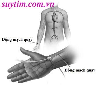 Đặt stent mạch vành qua động mạch quay
