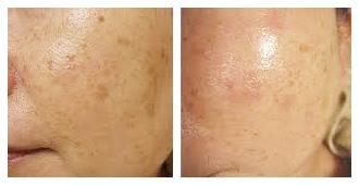 痘疤治療的推薦雷射是淨膚雷射,淨膚雷射治療痘疤有很好的效果,痘疤治療中凹痘疤跟色素痘疤推薦淨膚雷射來治療,做痘疤治療要有完整的規劃,才會有無疤痕的臉蛋