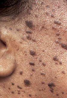 老人斑是常見的斑點,要治療老人班要靠雷射來除斑。皮秒雷射治療老人斑特別有效,預防老人斑要防曬,做完雷射後會色素沉澱,可做淨膚雷射或皮秒雷射加強色素代謝