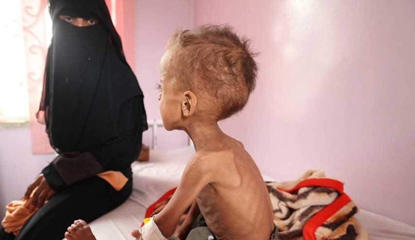 منظمة الصحة العالمية تعلن انتشار الكوليرا في اليمن