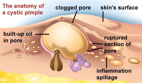 痘疤治療的最佳雷射是飛梭雷射,飛梭雷射專治凹痘疤跟臉上的不平整,痘疤治療中難治的凹痘疤要靠飛梭雷射治療,要做痘疤治療要有完整的計劃,才能有無痘疤的臉蛋