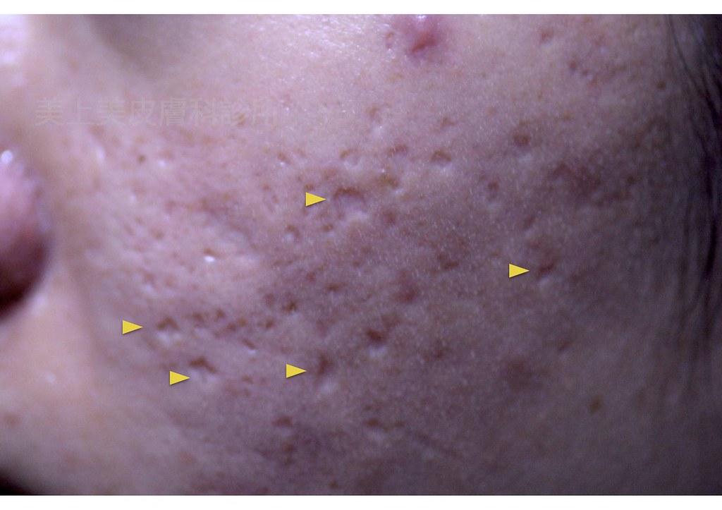 痘疤治療的推薦雷射是氣化式磨皮雷射,磨皮能讓痘疤治療有更棒的效果。痘疤治療中棘手的凹痘疤要靠磨皮,利用磨皮把不平的凹痘疤表皮氣化,給你很棒的治療成果。
