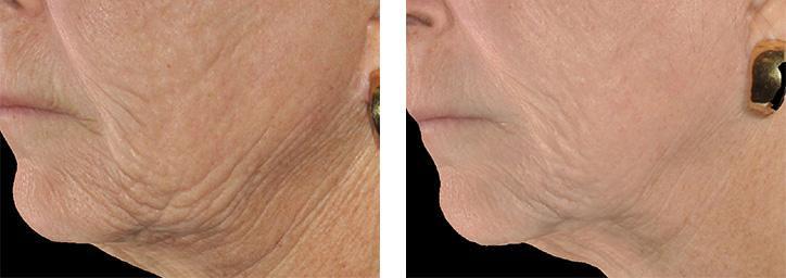 臉部下垂如何改善?皮膚下垂如何改善?療程該如何選擇?美上美皮膚科的電波拉皮、音波拉皮改善下垂困擾!醫師提醒低頭族長時間往下看,也是造成臉部下垂的原因。