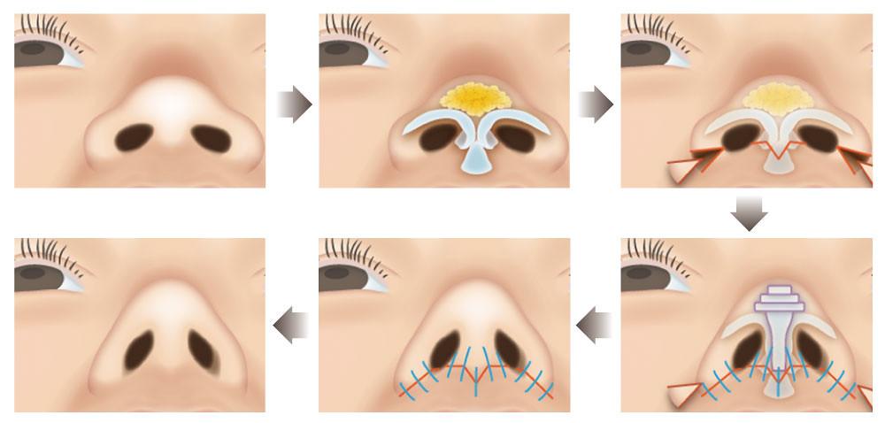 塌鼻會讓臉看起來沒那麼立體,朝天鼻給人豬鼻子的印象。塌鼻跟朝天鼻怎麼治療比較好?美上美的玻尿酸和晶亮瓷幫您解決塌鼻跟朝天鼻的問題,讓您擁有高挺的鼻子!