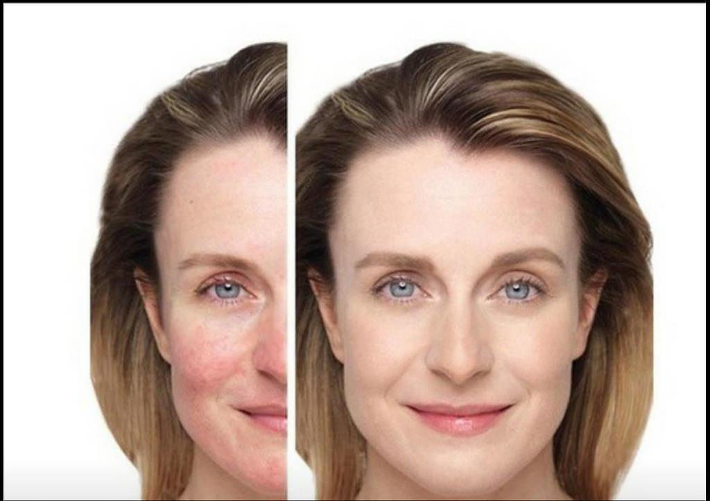 敏感性肌膚指肌膚容易敏感和耐受性低的膚質,困擾的地方就是會引起紅疹、搔癢、脫屑與乾燥,容易受到外在刺激造成皮膚不適。建議以營養點滴、瞬效修護保濕做保養